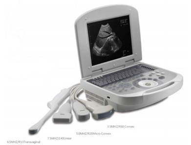 Notebook Ultrasound scanner